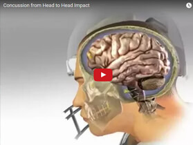 medical animations concussions