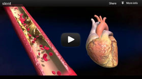 medical cardiac animations