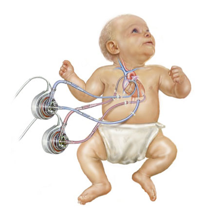 Pediatric Heart Pumps