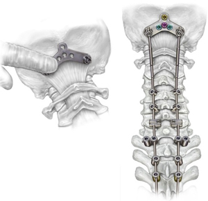 Orthopedic Illustrations